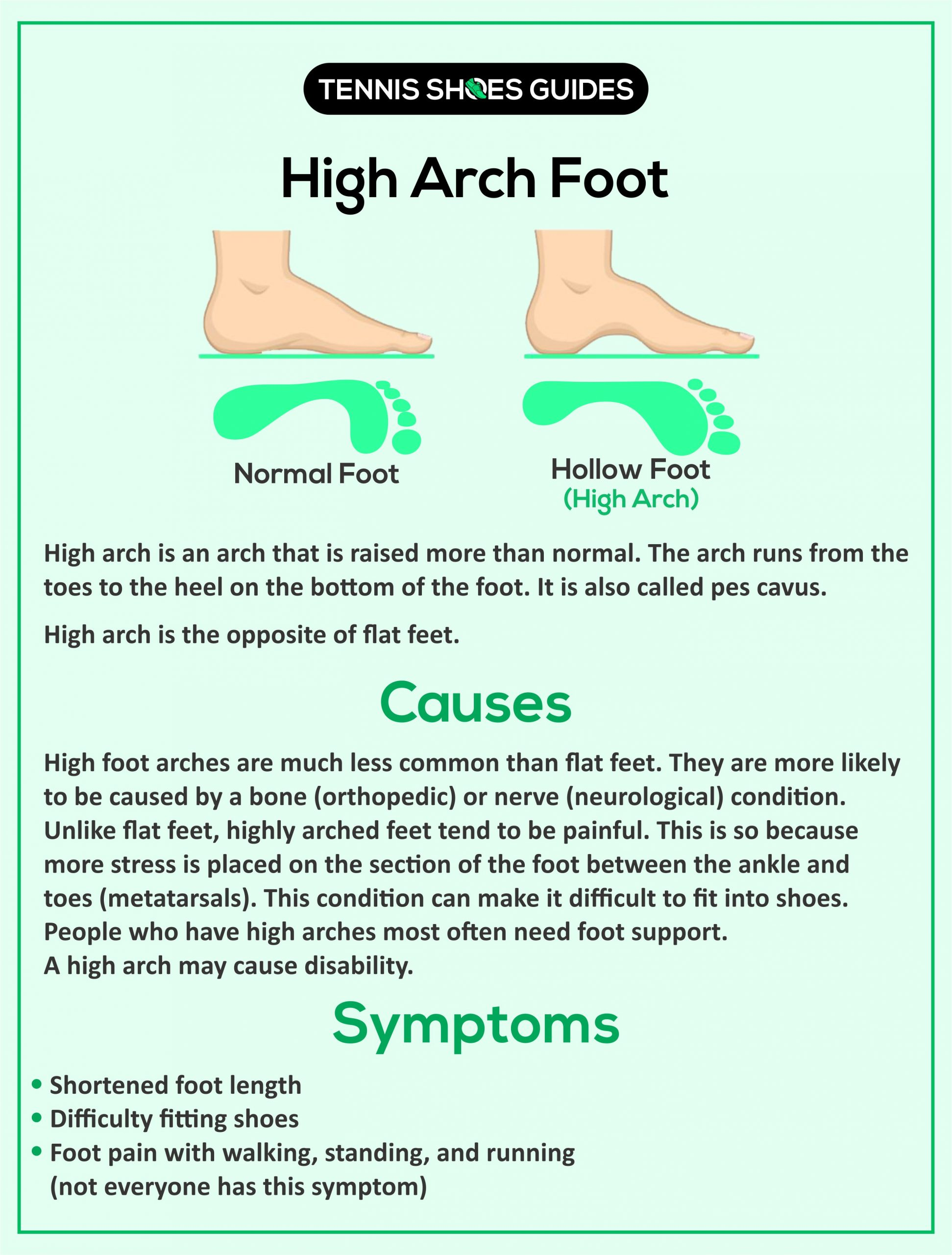 Causes and symptoms of high arch foots