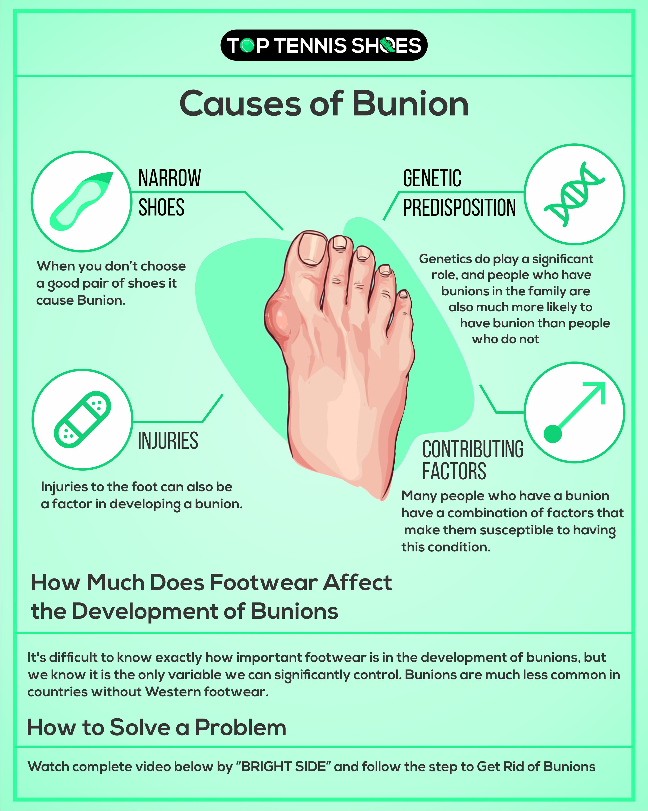 causes of bunion